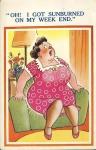 SUNBURNED LADY Vintage Sunshine Comic Postcard refB1